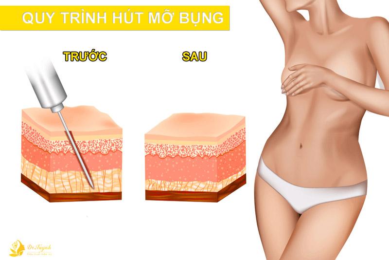 Quy trình tiêu chuẩn hút mỡ toàn bụng tạo body